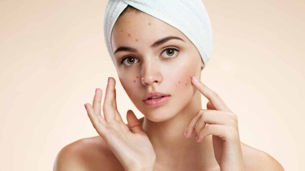 8 Best Zinc Supplements for your Skin Scars and Acne