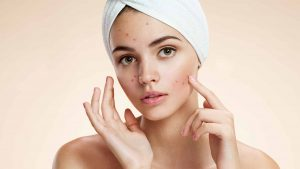 Best Zinc Supplements for Acne and Scars