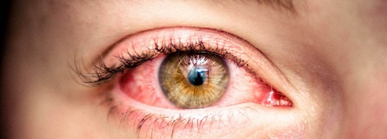 clean cure and get rid of bloodshot red eyes